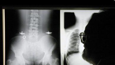 Photo of Studi: Olahraga Bantu Lindungi Tubuh dari Kanker Tulang